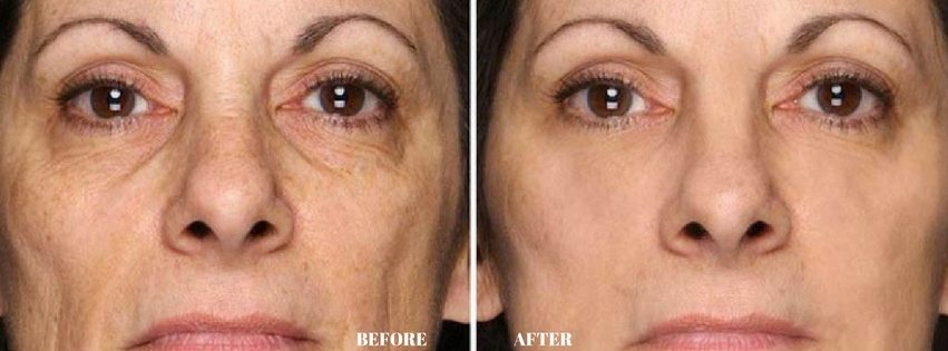 Dermology Anti Aging Cream Before and After