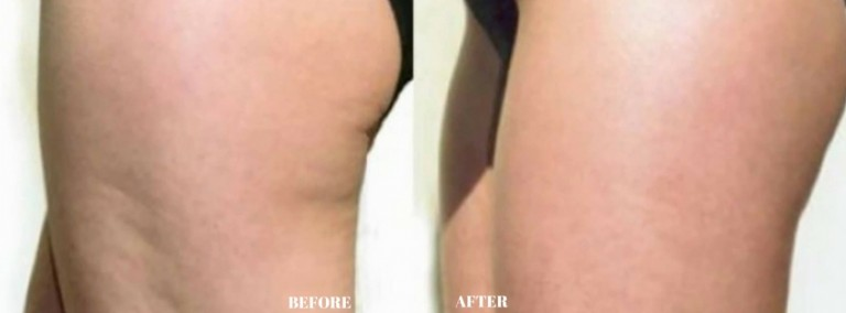 Dermology Cellulite Cream Before and After