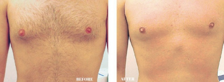 Dermology Hair Removal Cream Before and After