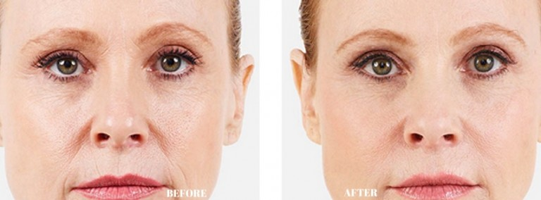 Dermology Skin Brightener Cream Before and After