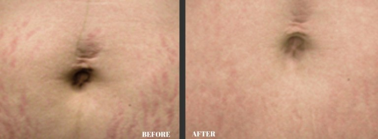 Dermology Stretch Mark Cream Before and After