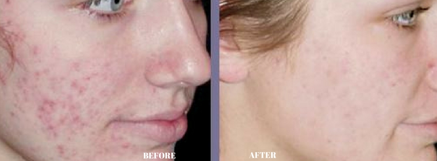 dermology acne treatment cream before and after