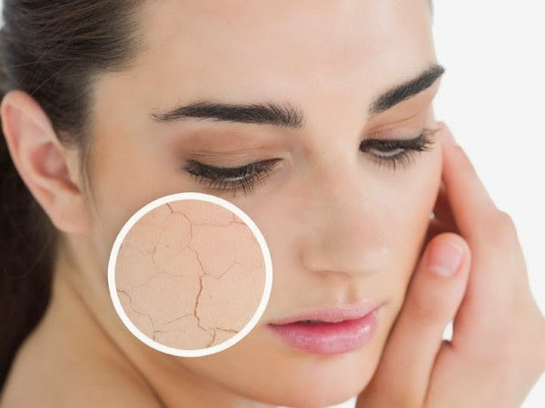 Acne treatment for dry skin
