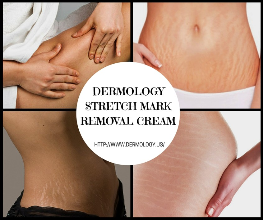 Dermology Stretch Mark Removal Cream