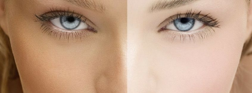 Common Skin Whitening Mistakes