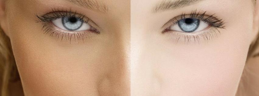 Common Skin Whitening Mistakes