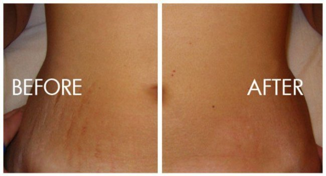 How-to-Avoid-Stretch-Marks-1