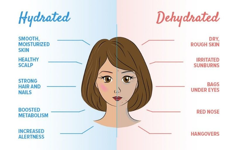 Dehydrated Vs Hydrated For Skin